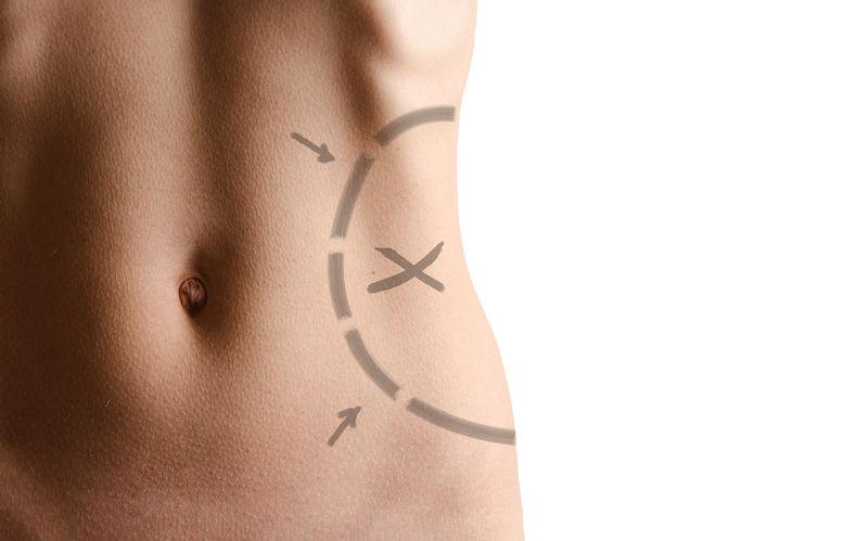 Liposukcijom do savrsenog tijela